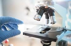 Phát hiện chất ức chế protein có thể giúp điều trị ung thư gan