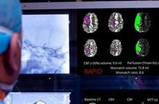 Bệnh viện đầu tiên ứng dụng trí tuệ nhân tạo điều trị đột qụy