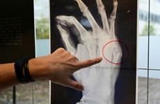 Triển lãm ảnh chụp X-quang về vấn nạn bạo lực gia đình tại Italy