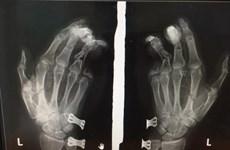 Điện thoại phát nổ khi đang sạc, nam thanh niên bị dập nát bàn tay
