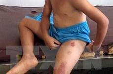 Sóc Trăng: Điều tra vụ cha dượng bạo hành con riêng của vợ