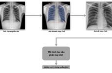 Vinbrain và FIT phát hành sách trắng về AI cho chuẩn đoán bệnh lao