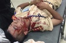 Hà Nội: Người vi phạm dùng đá đánh cảnh sát giao thông nhập viện