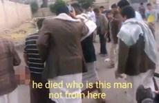 Hãi hùng với cảnh kẻ đánh bom IS vẫn nói dù bị đứt đôi người