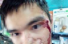 Hà Nội: Nghi vấn tài xế Grab đánh người vì không nhường đường