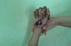 Trung Quốc: Cô giáo hành hạ học sinh để trục lợi tiền từ thiện