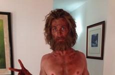 Tài tử điển trai Chris Hemsworth gầy trơ xương khi đóng phim mới