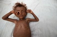 Bạn sẽ rớt nước mắt khi xem những hình ảnh này về Yemen