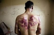 Nạn nhân bị tra tấn ở Syria kiện giới chức tình báo của Damascus