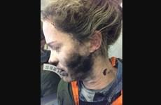 Người phụ nữ bỏng mặt do tai nghe phát nổ trên máy bay