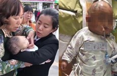 Bị quả táo từ trên trời rơi trúng đầu, cô bé 3 tháng tuổi hôn mê sâu