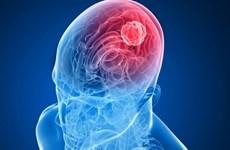Tín hiệu vui cho những bệnh nhân đang điều trị ung thư não ác tính