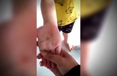 Thực hư việc cô giáo đâm vào tay bé trai 5 tuổi tại Bình Phước?