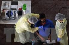 Singapore thử nghiệm giai đoạn cuối kháng thể chống virus SARS-CoV-2