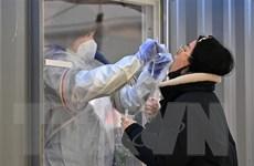 Celltrion đạt thỏa thuận cung cấp bộ xét nghiệm SARS-CoV-2 tại Mỹ