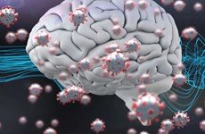 Virus SARS-CoV-2 có thể tác động trực tiếp tới tế bào não