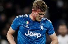 Juventus thất bại vì cầu thủ thi đấu thiếu quyết tâm?