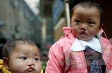 Trẻ khuyết tật bẩm sinh do ô nhiễm môi trường