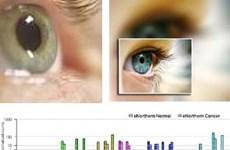 Phát hiện gene thứ 15 gây mù lòa bẩm sinh
