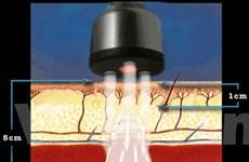 Laser cường độ thấp có hại cho người bị ung thư da