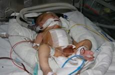Cứu sống trẻ non tháng dị tật còn ống động mạch