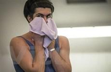 Ngôi sao ballet kiện nhà hát Bolshoi sau vụ tạt axít