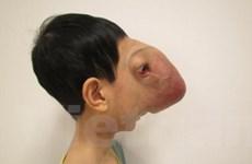 """Phẫu thuật thành công cho """"trẻ không có khuôn mặt"""""""