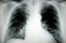 Phương pháp mới phát hiện bệnh ung thư phổi