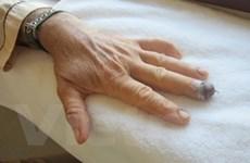 Phẫu thuật nối thành công đầu ngón tay bị đứt lìa