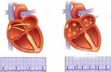 Những người nhiễm HIV có nguy cơ suy tim cao