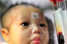 Phát hiện nguy cơ Down ở trẻ qua xét nghiệm máu