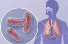 Lao kháng thuốc kháng cả 4 loại kháng sinh đặc trị