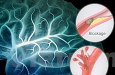 Giải pháp mới trong điều trị giảm nguy cơ đột quỵ