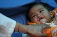 Trung Quốc: Tỷ lệ trẻ khuyết tật bẩm sinh tăng nhanh