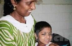 Bé gái Ấn Độ thoát khỏi hôn mê nhờ âm nhạc