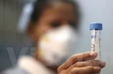 Na Uy đối mặt với nguy cơ bùng phát dịch cúm lợn