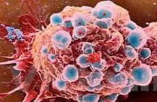 Phát hiện mới về cơ chế di căn của tế bào ung thư
