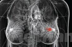 Xét nghiệm gen ATM giúp dự đoán trước ung thư vú