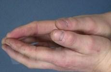 Phương pháp mới điều trị hiệu quả bệnh đa xơ cứng
