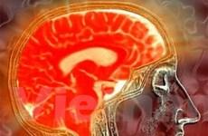 Chụp X quang răng có nguy cơ bị u màng não cao