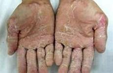 Hỗ trợ bệnh nhân viêm da tay, chân ở Quảng Ngãi