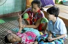 Mexico tiếp tục ủng hộ nạn nhân da cam Việt Nam