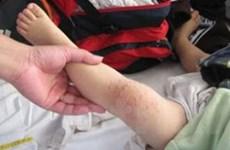 Hà Nội có nhiều người mắc bệnh tay chân miệng
