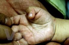 106.500 người mắc tay chân miệng trong năm 2011