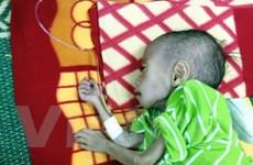 Cảm thương bé trai 3 tuổi bị thể teo đét chỉ nặng 6kg