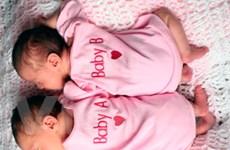 Tỷ lệ các cặp song sinh tại Mỹ đang tăng kỷ lục