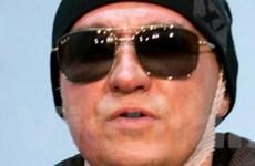 Giám đốc Bolshoi sẽ trở lại làm việc sau vụ tạt axít