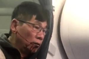 Vụ bác sỹ gốc Việt bị lôi khỏi máy bay: Đây là nước Mỹ của Trump