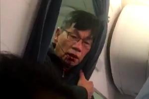 Chuyên gia: United Airlines sẽ bồi thường thế nào cho bác sỹ gốc Việt