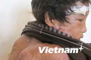 Cà Mau: Sớm đưa ra xử vụ hành hạ cháu Hào Anh